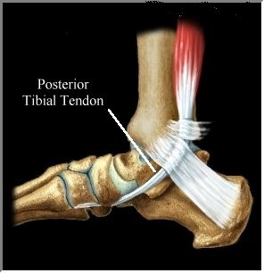 Tibial Tendonitis Running Shoes